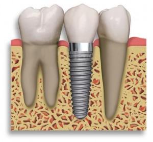 Implantai pakeis jūsų dantis